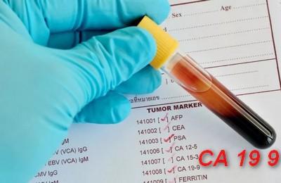 Что за анализ крови са 19-9 медицинская академия санкт-петербург проходной балл 2014
