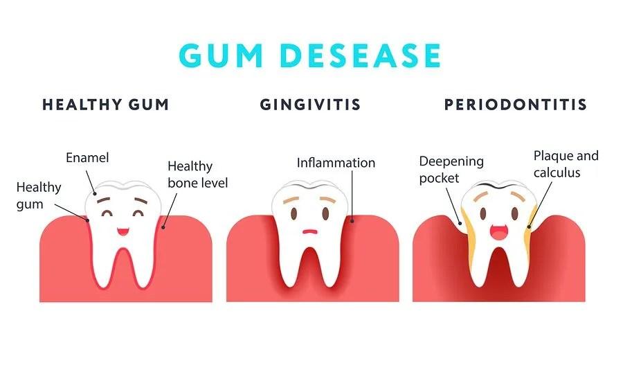 Gum Disease - Periodontal Disease -