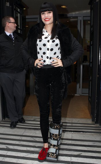 jessie j shoes broken foot