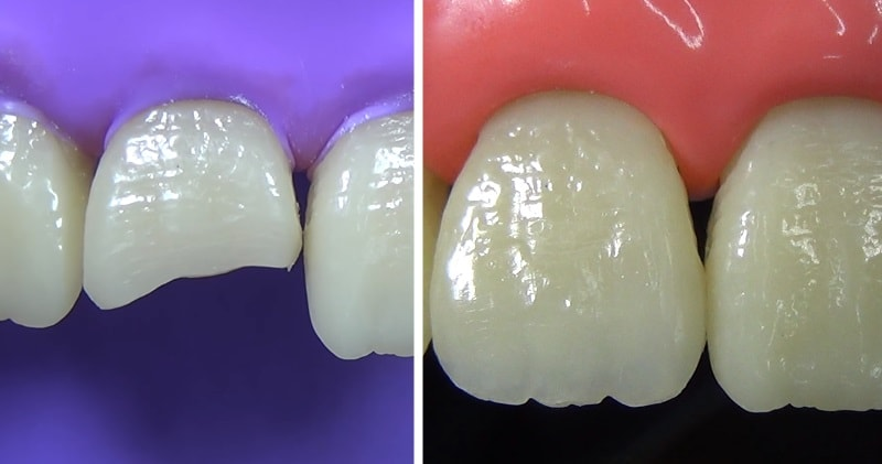 Composite Restoration Of Fractured Anterior Tooth Is Satisfying To