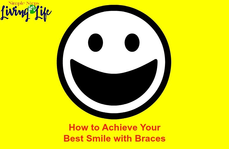 How to Achieve Your Best Smile with Braces