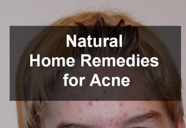 Natural Home Remedies for Acne
