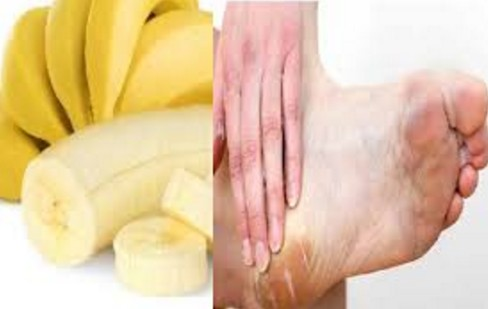 Fruit Pack For Cracked Heels