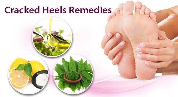 cracked heels remedies