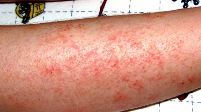 Tea Tree Oil For Fight Skin Infection