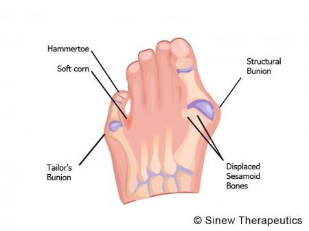 Foot Injuries Foot Pain Information - Sinew Therapeutics