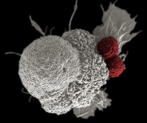 crispr-targets-cancer-first-human-trial-42