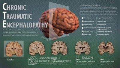 Chronic Traumatic Encephalopathy, a killer disease   SiOWfa16: Science in Our World: Certainty ...