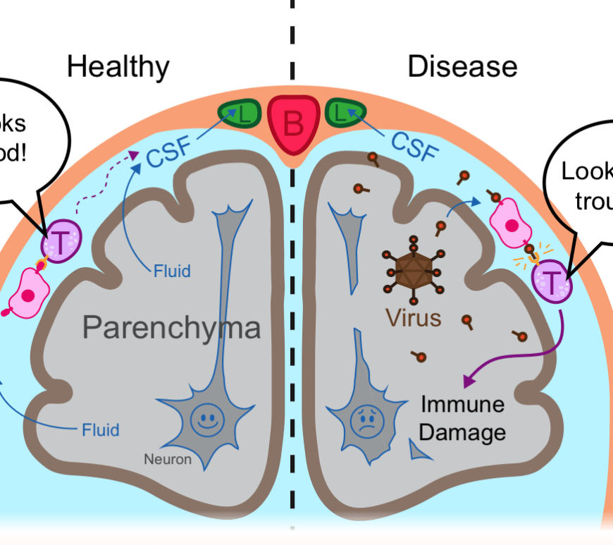 Figure 2: Immune surveillance in the CNS. Immune cells (pink) surveying the CSF present what they see to circulating T cells (purple). Lymphatics (green) provide a route for CSF and circulating immune cells to reach lymph nodes in the neck and return to the rest of the body.