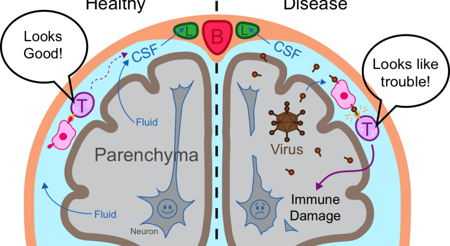 Figure 2: Immune surveillance in the CNS. Immune cells (pink) surveying the CSF present what they see to circulating T cells (purple). Lymphatics (green) provide a route for CSF and circulating immune cells to reach lymph nodes in the neck and return to the rest of the body. In a healthy brain (left), T cells don't see a problem and circulate back to the rest of the body. In a diseased brain (right), the T are alerted to infection and respond by infiltrating the parenchyma, which can cause immune-mediated damage. (Cells not to scale).
