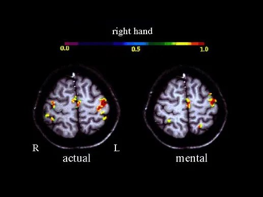 Figure 3. Results of a statistical fMRI analysis. Participants in this task were asked to actally move their right hand or to mentally think about moving their right hand. Although the whole brain is active all the time, the colored voxels in this image show which areas are more active during this particular task. The results show that thinking about doing a motion and actually doing that motion have similar brain activity. Interestingly, the left side of the brain is more involved in controlling the right side of your body. (Wikimedia)