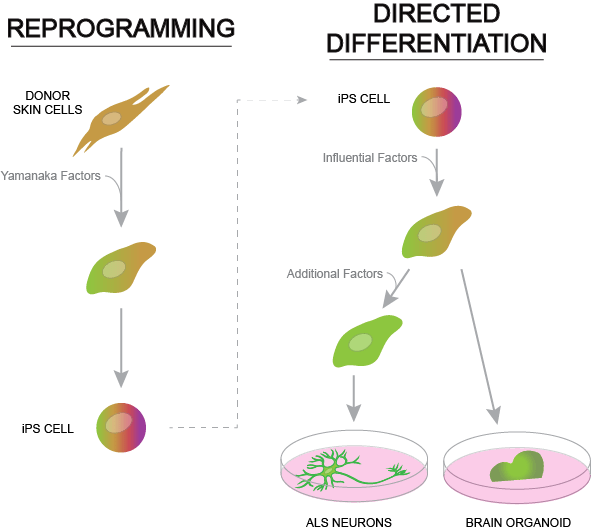 Figure 2. The process of reprogramming mature skin cells to revert to a pluripotent state (left). The process of using iPS cells generated through reprogramming to make patient-specific ALS neurons and brain organoids.