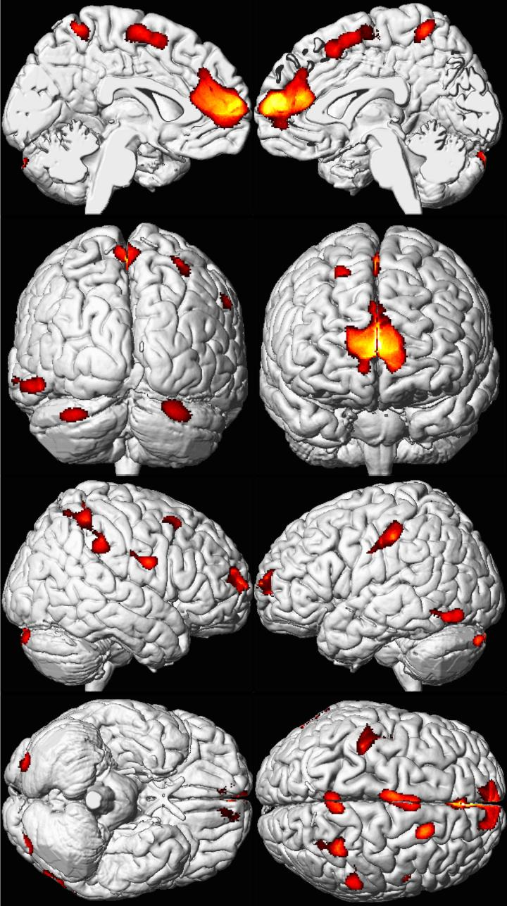 Figure 2: Lead exposure is associated with decreased brain volume. Brain scans were compiled/averaged from 157 subjects in the Cincinnati Lead Study and overlaid on a standard brain template. Red and yellow areas indicate regions of volume loss. The first row of images shows prefrontal cortex volume loss. Figure from Cecil et al., 2008, licensed under a Creative Commons Attribution License.