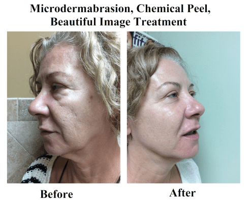 Microdermabrasion, Chemical Peel, Beautiful Image Treatment Before and After