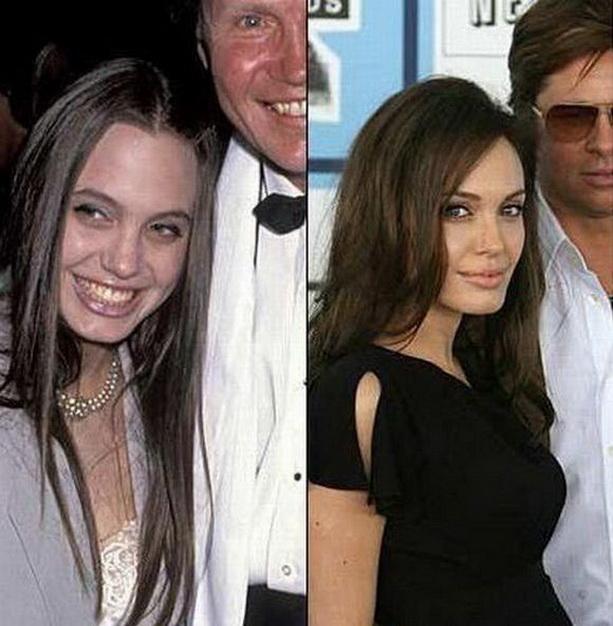 Анджелина Джоли до и после