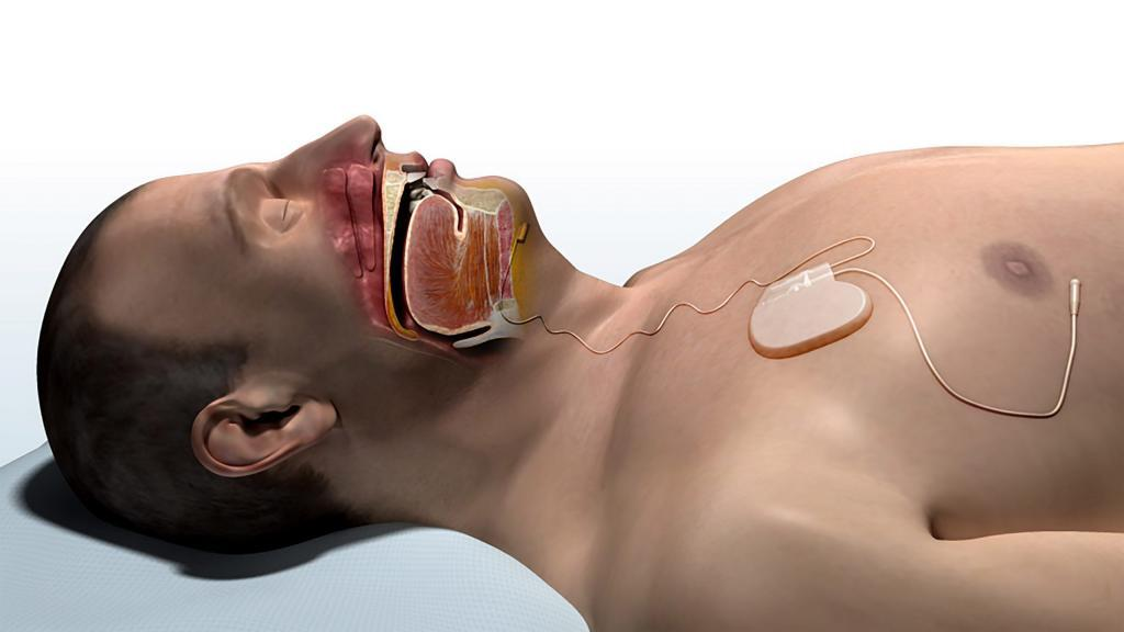 Inspire Upper Airway Stimulation system in the body after sleep apnea surgery