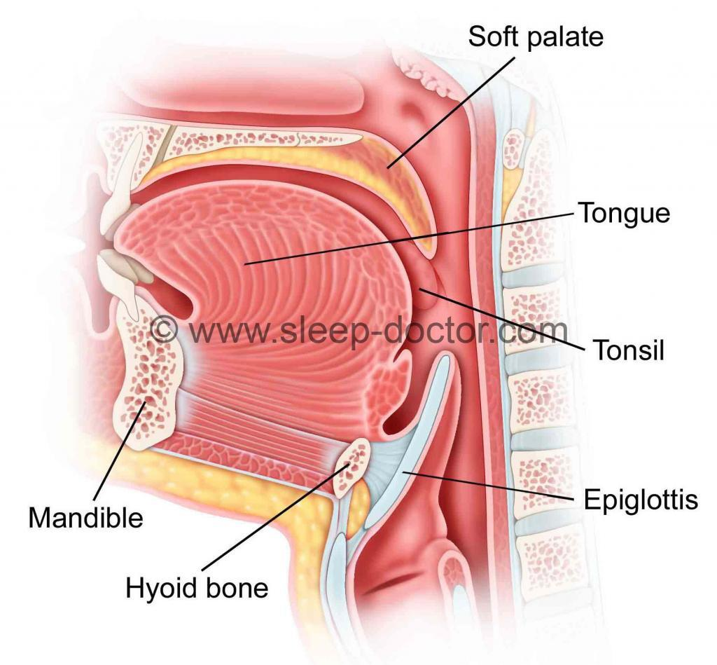 anatomical image showing a patient with a long epiglottis that can play a role in sleep apnea
