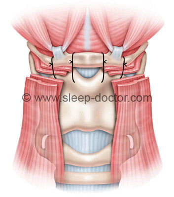 postoperative image of frontal view after hyoid suspension for sleep apnea