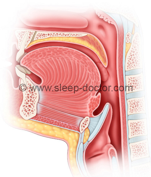 lingual tonsillectomy surgery for sleep apnea postoperative image