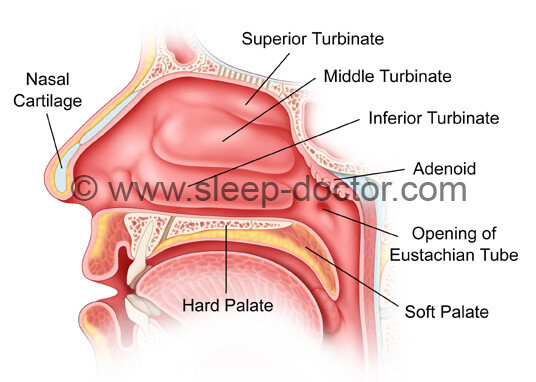 Turbinate Surgery image