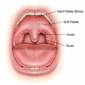 Pillar Procedure image showing implants in place in the soft palate
