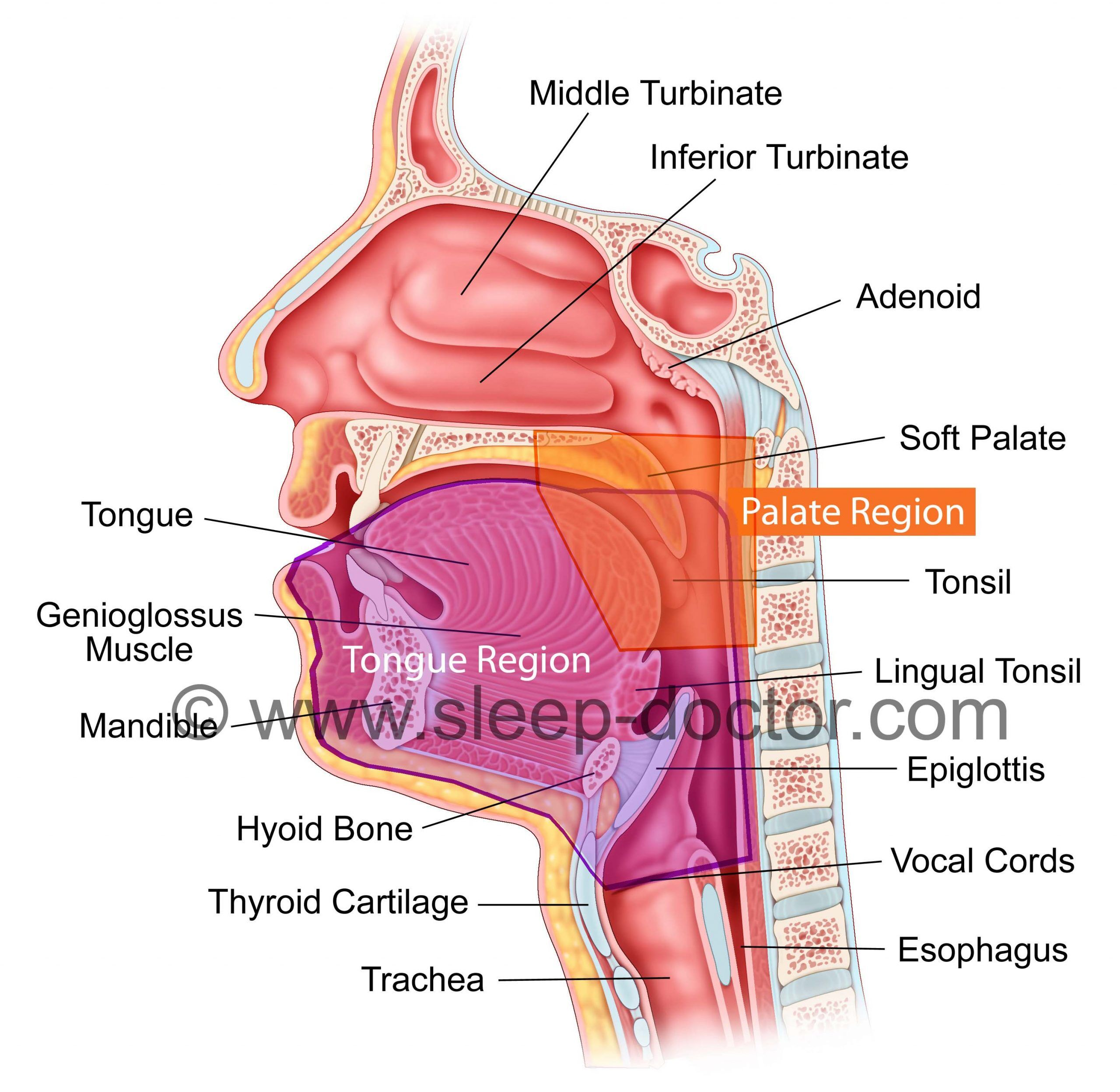 drug-induced sleep endoscopy snoring sleep apnea throat anatomy image