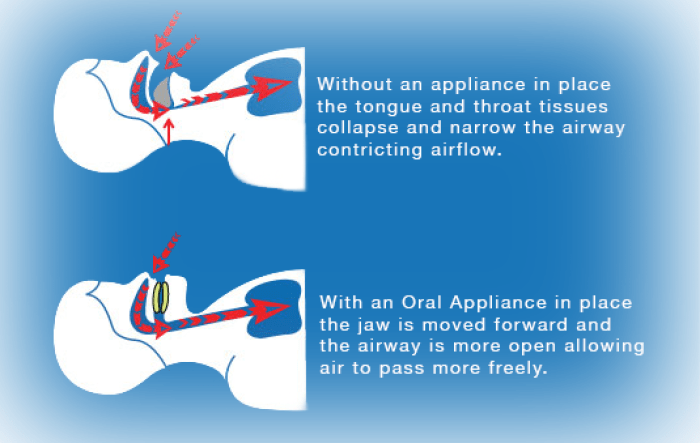 Airway for Oral Appliance HTML