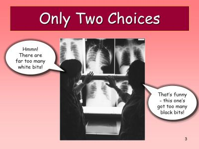 Principles of Chest X-Ray Interpretation - ppt video online download