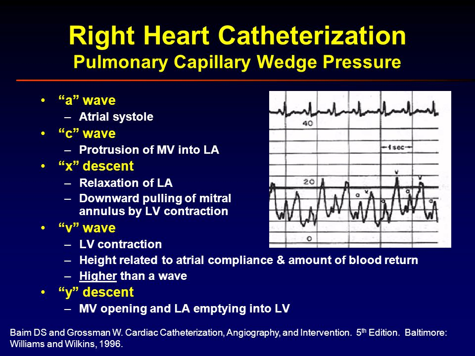 The pulmonary capillary wedge pressure or PCWP also called the