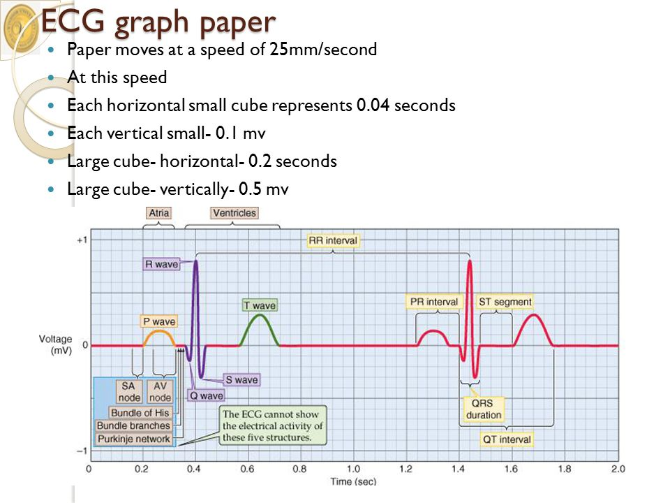 ecg graph paper - Intoanysearch - graph paper powerpoint