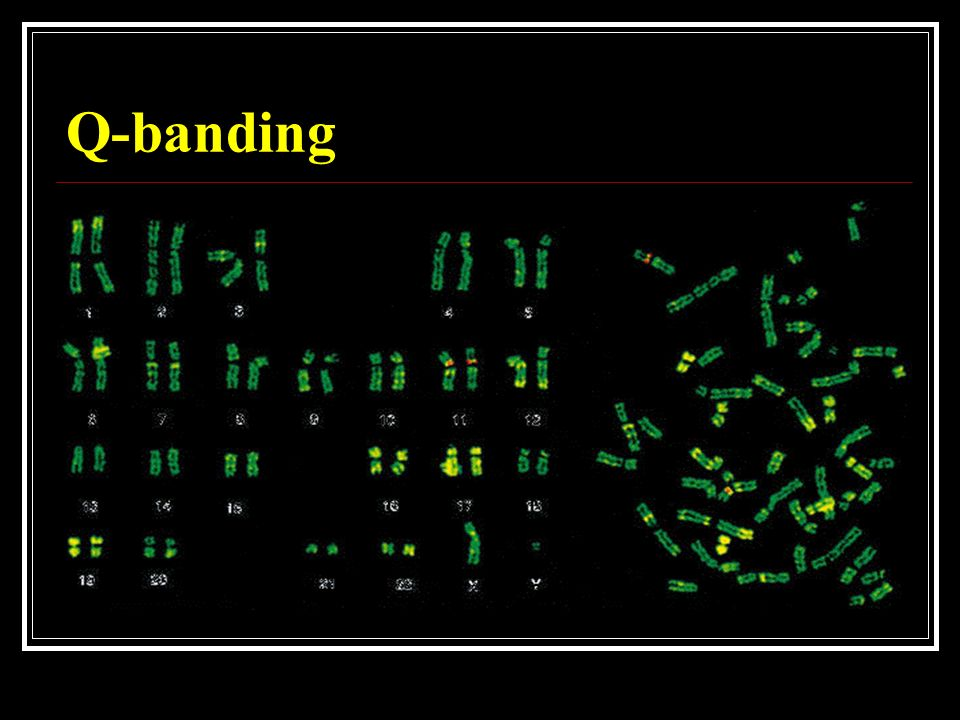 Chromosome Gene Dr. Nasser A Elhawary Professor Of Medical Genetics - Ppt