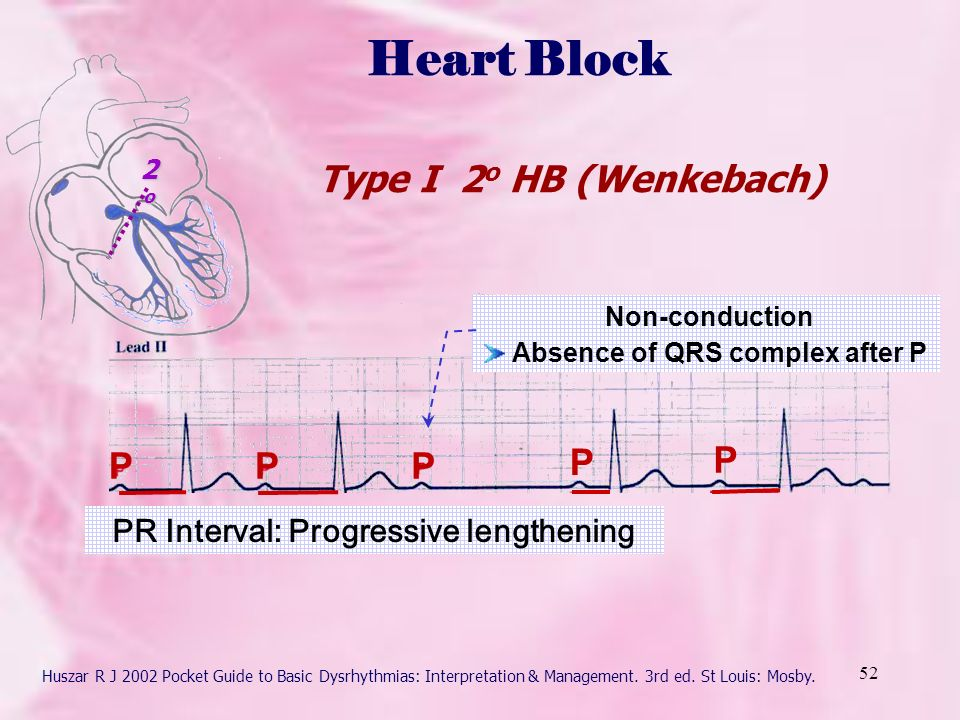 Basic Clinical Electrocardiography Kitty Chan - ppt download - Basic P&l
