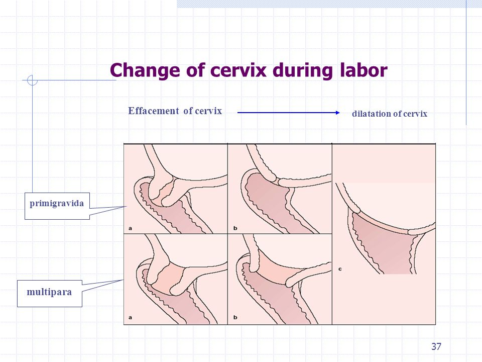 Normal Labor or Delivery - ppt video online download