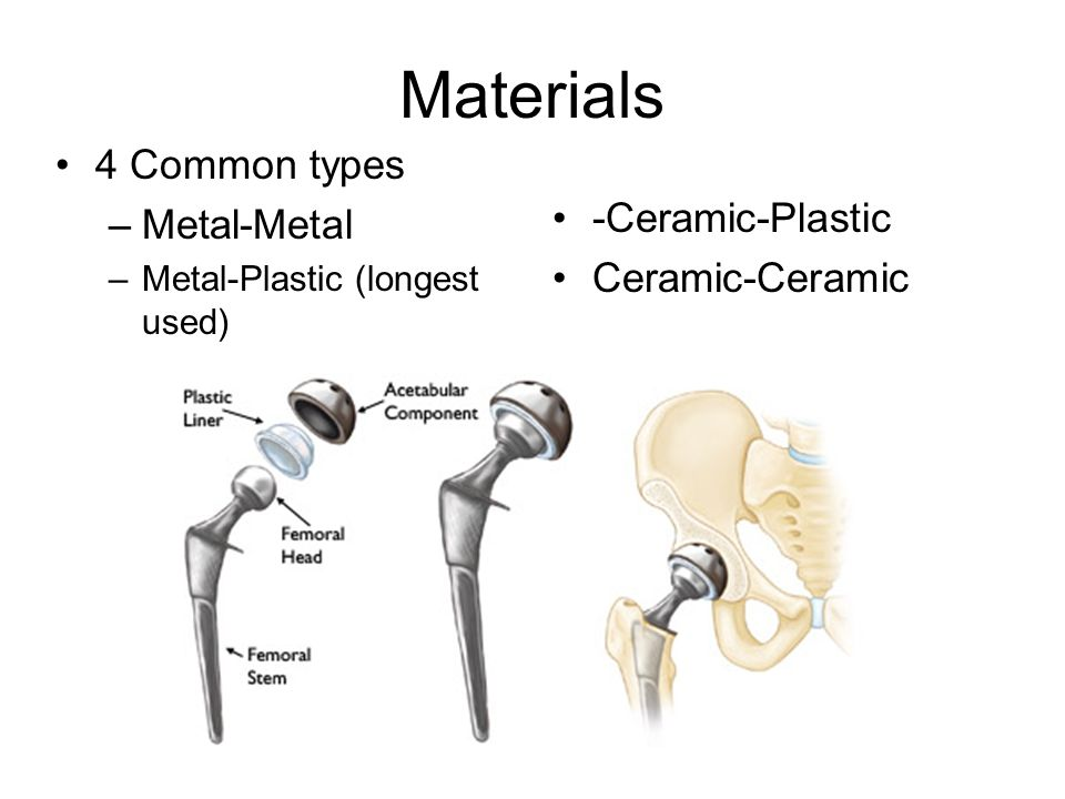 Artificial Hip Replacement - ppt video online download