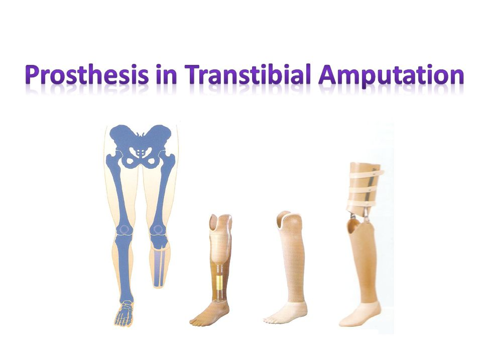 Prosthesis in Transtibial Amputation - ppt video online download
