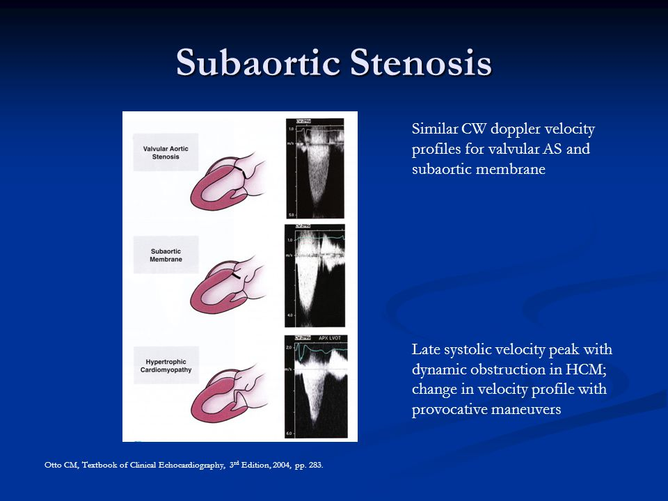 Chromosome Gene Aortic Stenosis Amit J. Thosani 10 September Ppt Video