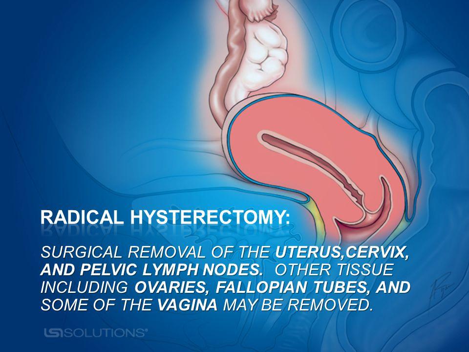 Alphabet soup Alphabet soup Reasons for Hysterectomy FOCUS