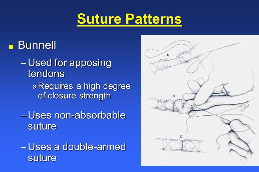Wound Healing and Suture Knowledge - ppt video online download
