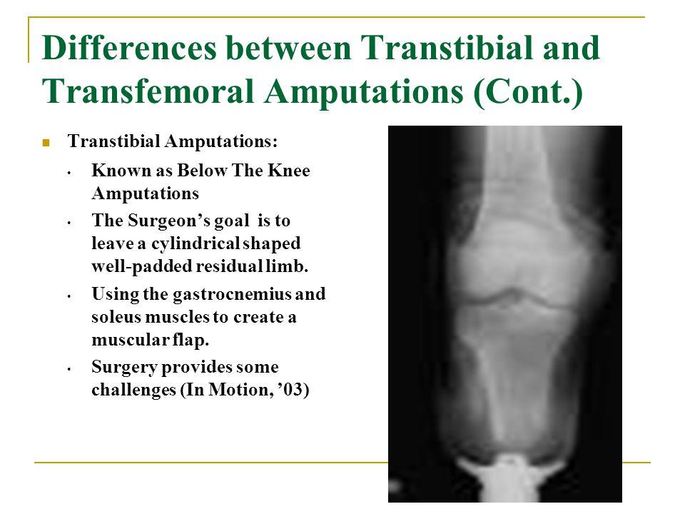 Transtibial Amputation - ppt video online download