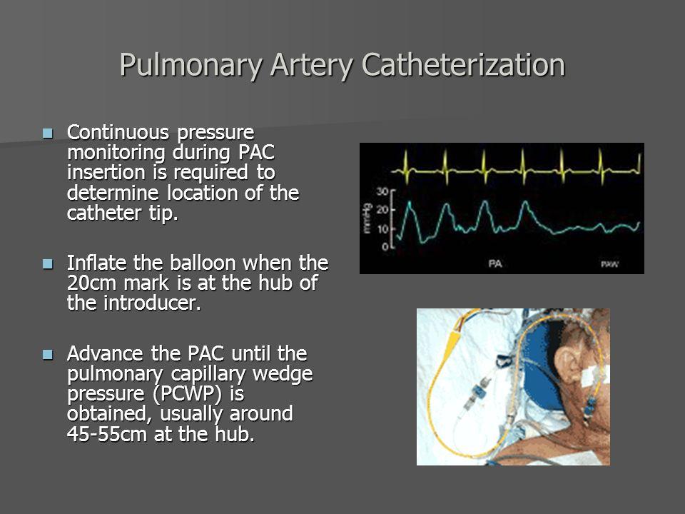 Pulmonary Artery Catheter - ppt video online download