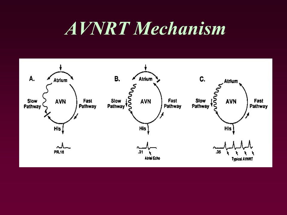 Atrioventricular Nodal Reentrant Tachycardia - ppt video online download