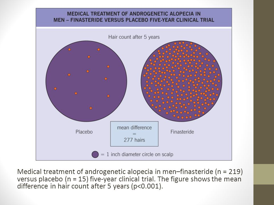 NON-CICATRICIAL AlOPECIA - ppt video online download