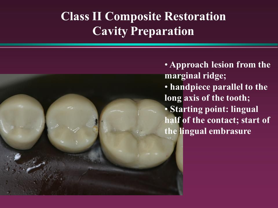 Class I and II Composite Restorations Principles  Techniques - ppt