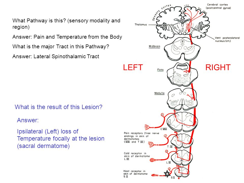 LEFT RIGHT What is the result of this Lesion? Answer - ppt video
