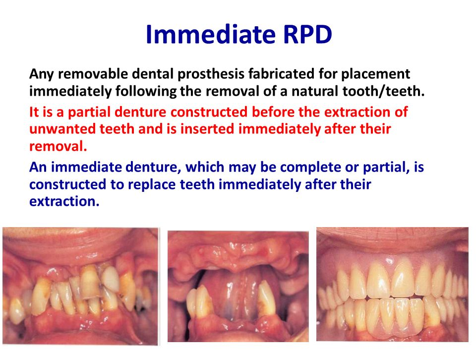 Acrylic partial denture - ppt video online download