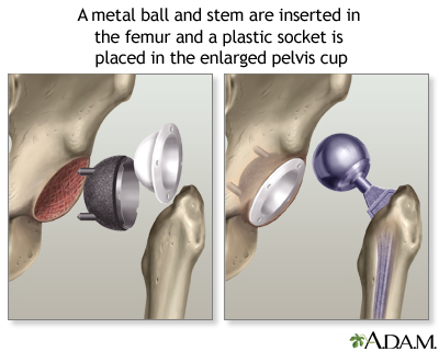 HIE Multimedia - Hip joint replacement