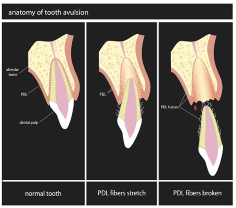 Your Child Just Knocked His Tooth Out—Now What? (1/2)