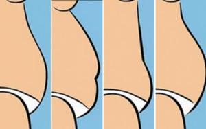 tipos de barriga