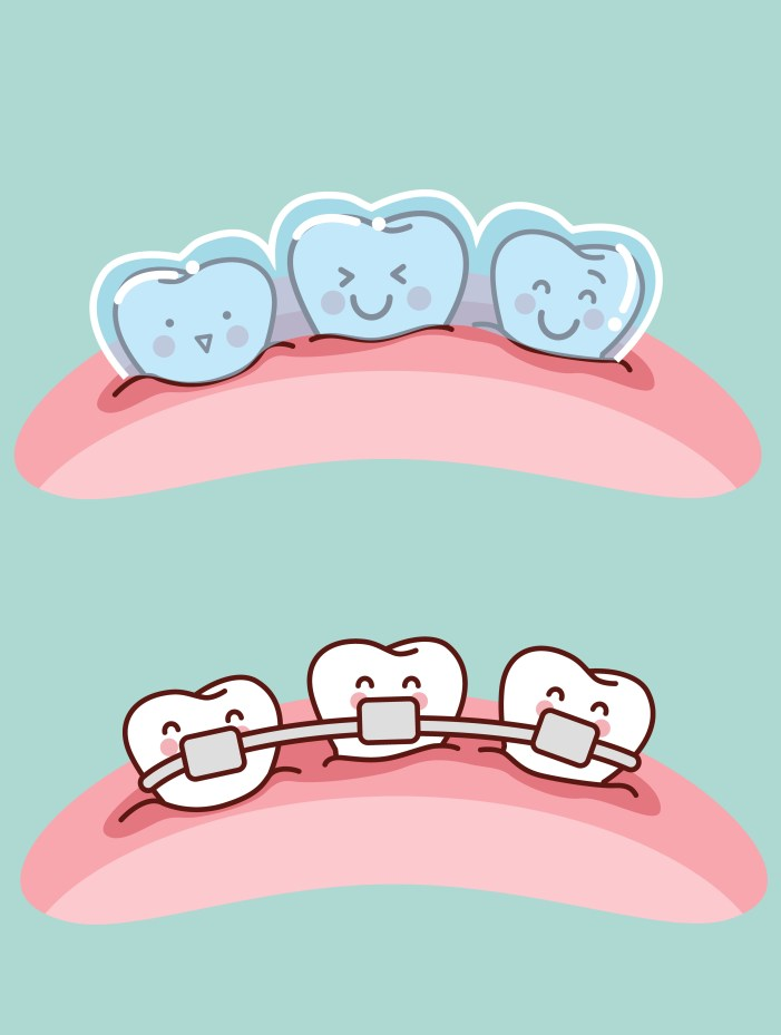 invisalign-vs-braces-which-is-the-right-choice