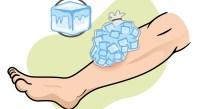 ブロック状の氷をビニール袋に入れて足をアイシングしている図